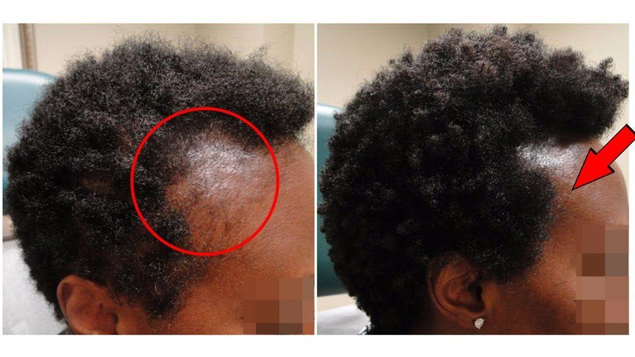 17+ Rabotifs coiffure hommes femmes harne le dernier