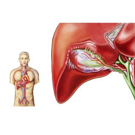 Anatomy of gall bladder ganglion Canvas Art - Stocktrek Images (17 x 12) #gallbladder