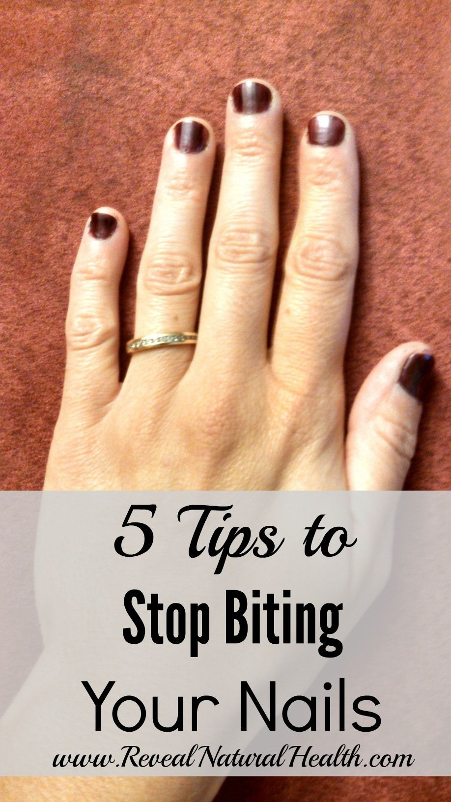 5 Tips To Stop Biting Your Nails Nail Care Tips Broken