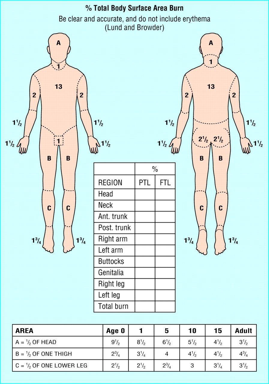 Rule Of 9 U0026 39 S Burn Chart