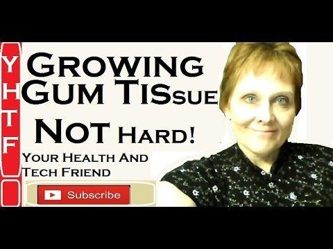 Growing Gum Tissue Is Easy ~ MMS, Baking Soda, Hydrogen Peroxide ~ Happens Naturally! ~~~Nancy - YouTube