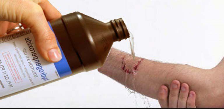 peroxid de hidrogen pentru varicoză)