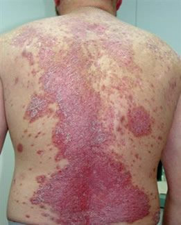 How To Treat Skin Fungus Fungal Rash Fungal Infection Rash