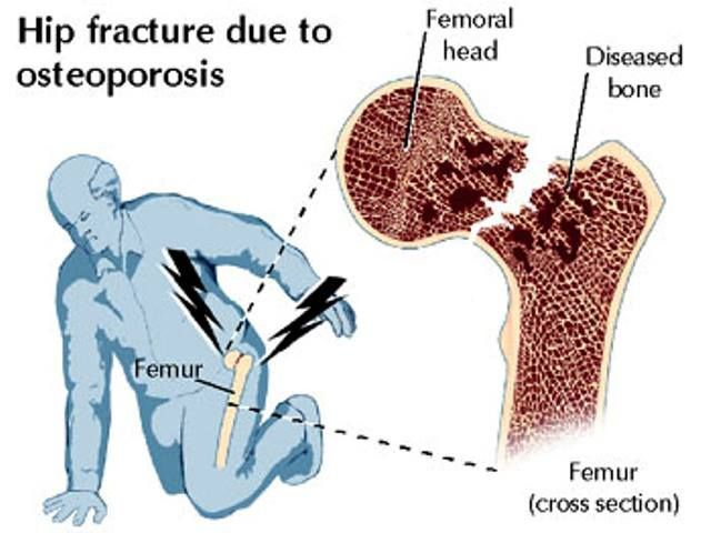 23++ Why do you think osteoporosis commonly leads to fractures information