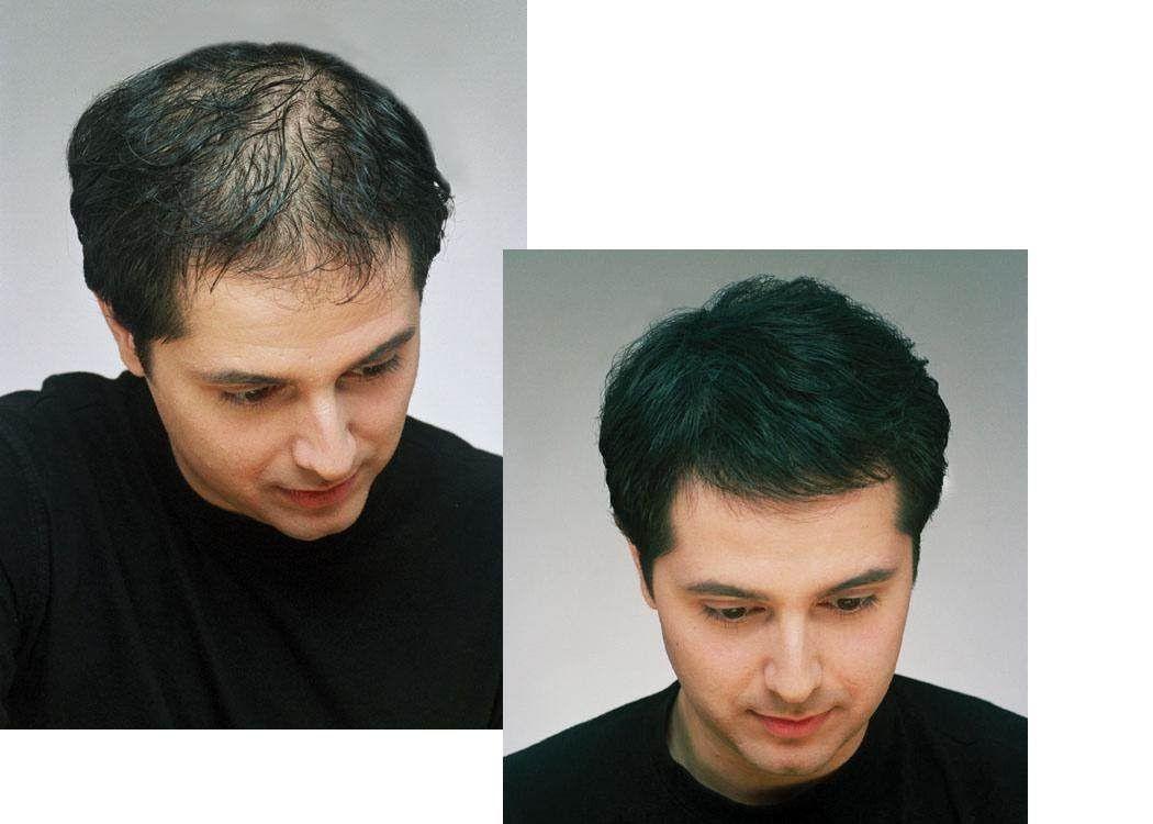 Haarausfall nur lange haare