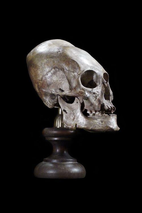 ✯ Elongated Skull .. Prepared by Ryan Matthew .. Photo by Sergio Royzen✯