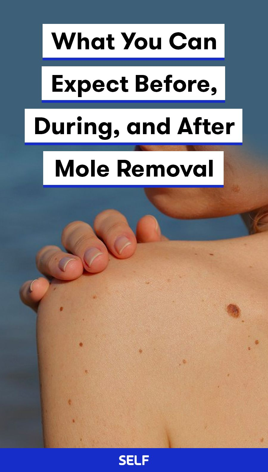 What You Can Expect Before, During, and After Mole Removal