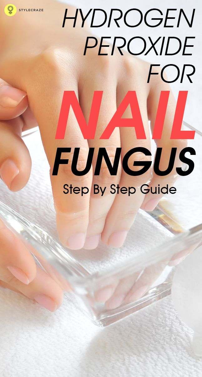 Do You Have Nail Fungus Are Looking For A Home Remedy To Treat It What Need Is Hydrogen Peroxide