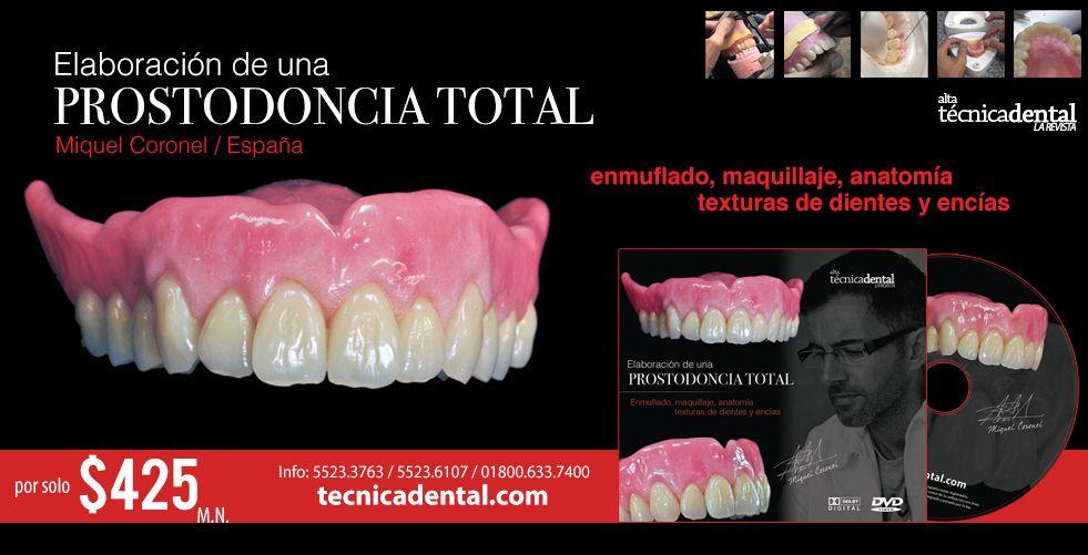 El Portal de la Prótesis Dental | Alta Técnica Dental | Prótesis ...