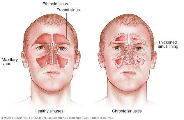 Tratamiento natural de la sinusitis cronica