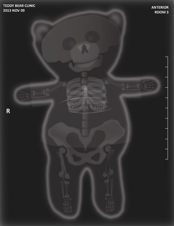 Teddy Bear XRay for hospital event by Luke Thomas  My Art and Design  Hospital games Girls