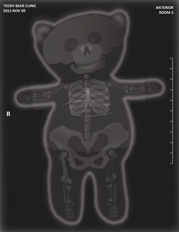 Teddy Bear XRay for hospital event by Luke Thomas  My Art and Design  Hospital games Girls