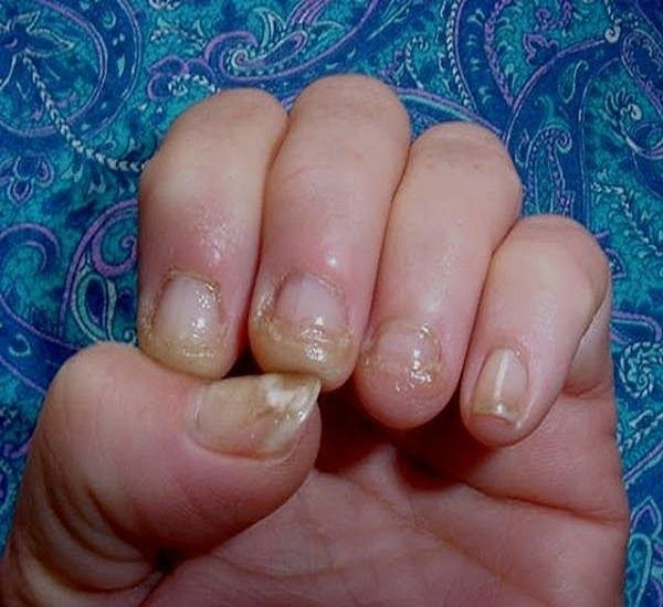 How to cure Nail Fungus? | Health korner | Pinterest | Cure, Fungus ...