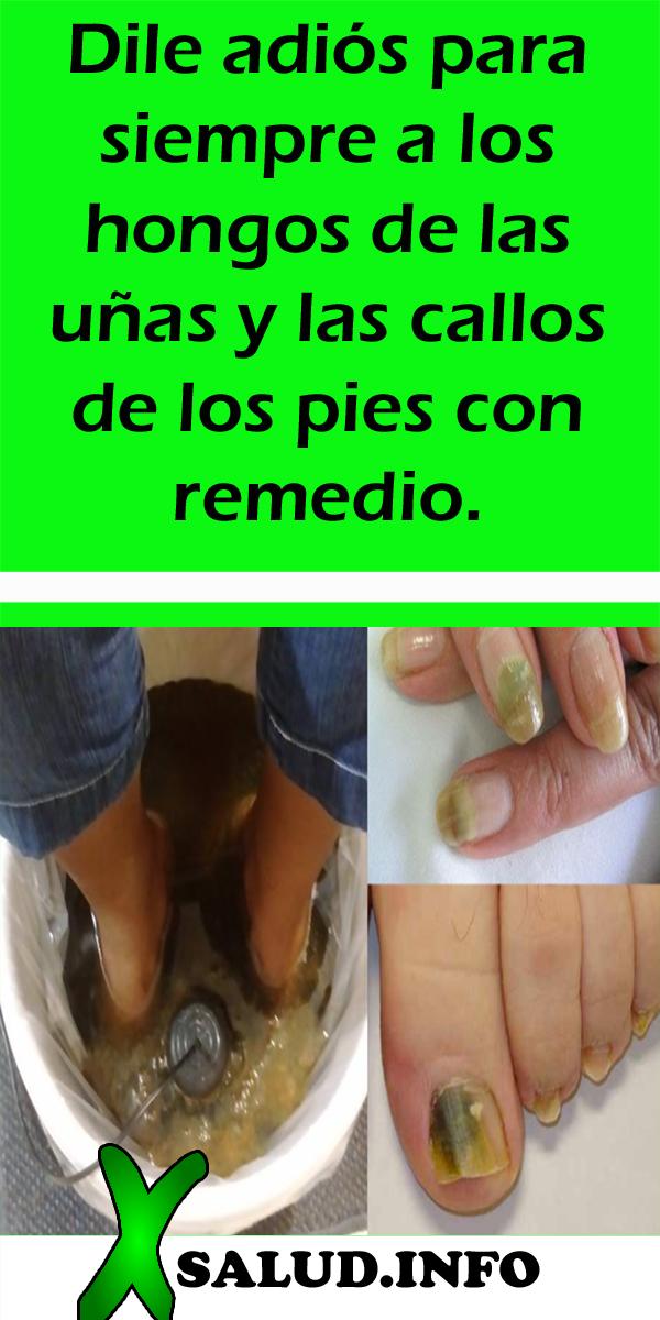 Tratamiento hongos unas pies casero