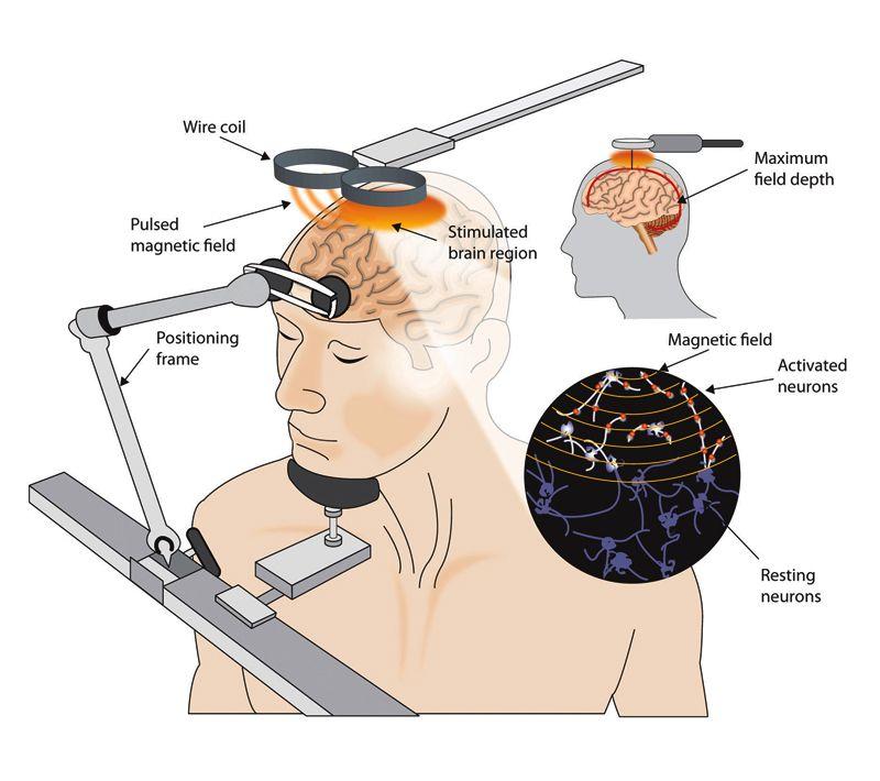 Electroconvulsive Therapy (ECT) Nursing History Depression