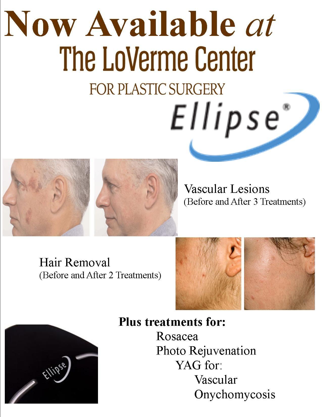 Ellipse  Ipl Now Available  Thelovermecenterforplasticsurgery Treatments Of  Hairrevoval