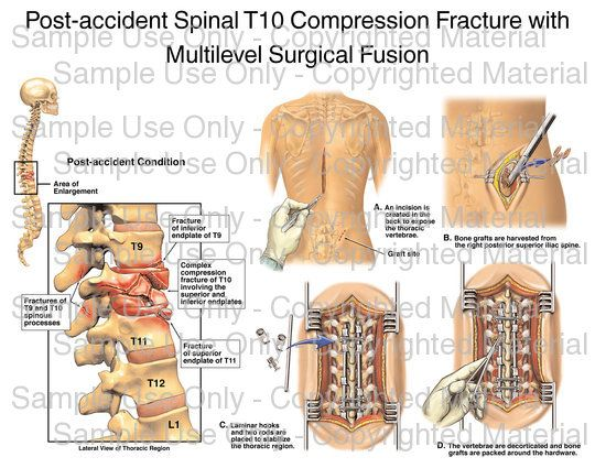 L2 Compression Fracture Of Spine