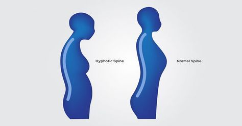 5 yoga moves to get rid of hunchback or kyphosis  yoga