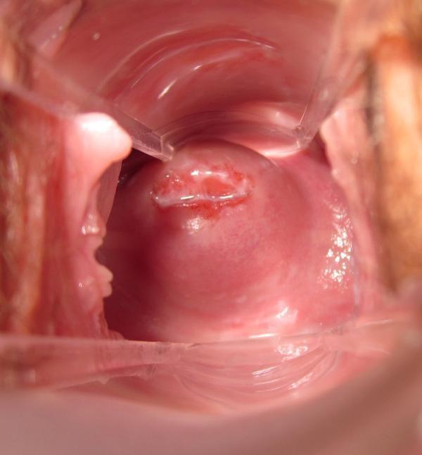 Implantation cramps