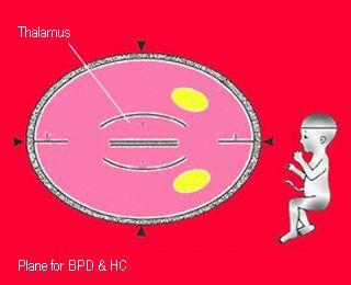 biparietal diameter dating