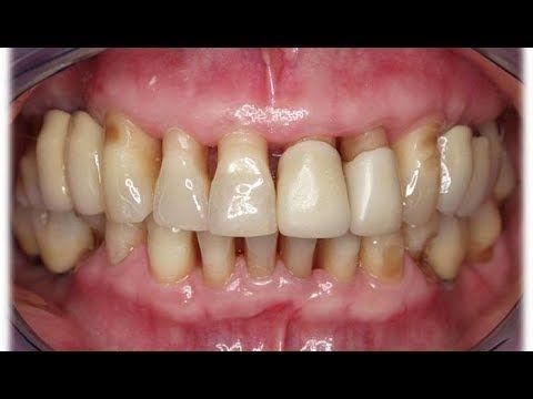 21 Ideas De Boca Encías Retraídas Salud Dental Salud Bucal