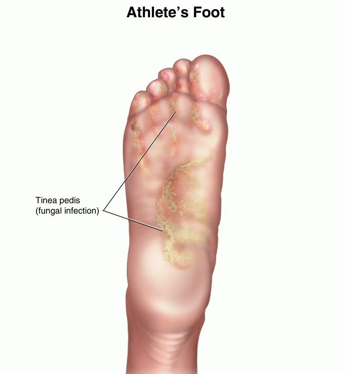 Best Natural Cure For Athlete S Foot