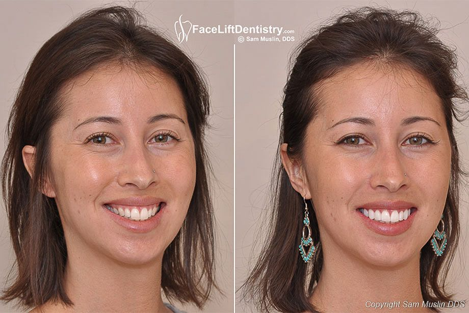 Large Front Teeth Treated With Non Invasive Porcelain