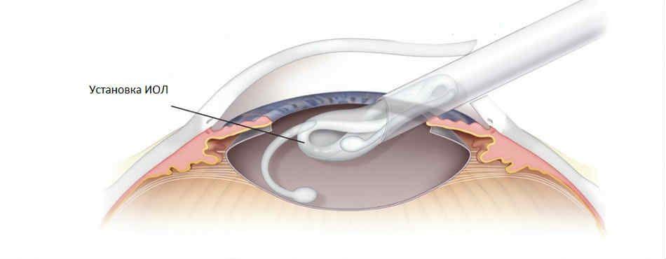 катаракта какой хрусталик лучше импортный или отечественный