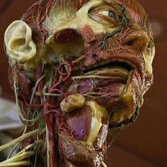 Dentaltown Head And Neck Anatomy Dental Anatomy Pinterest
