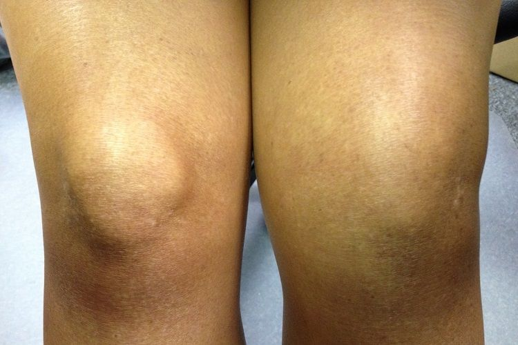 d9c38454bfb487eacae2bfcd7d1b089b - How To Get Rid Of Swelling And Fluid In Knee