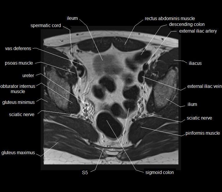 MRI pelvis anatomy | free male pelvis axial anatomy | MRI MALE ...