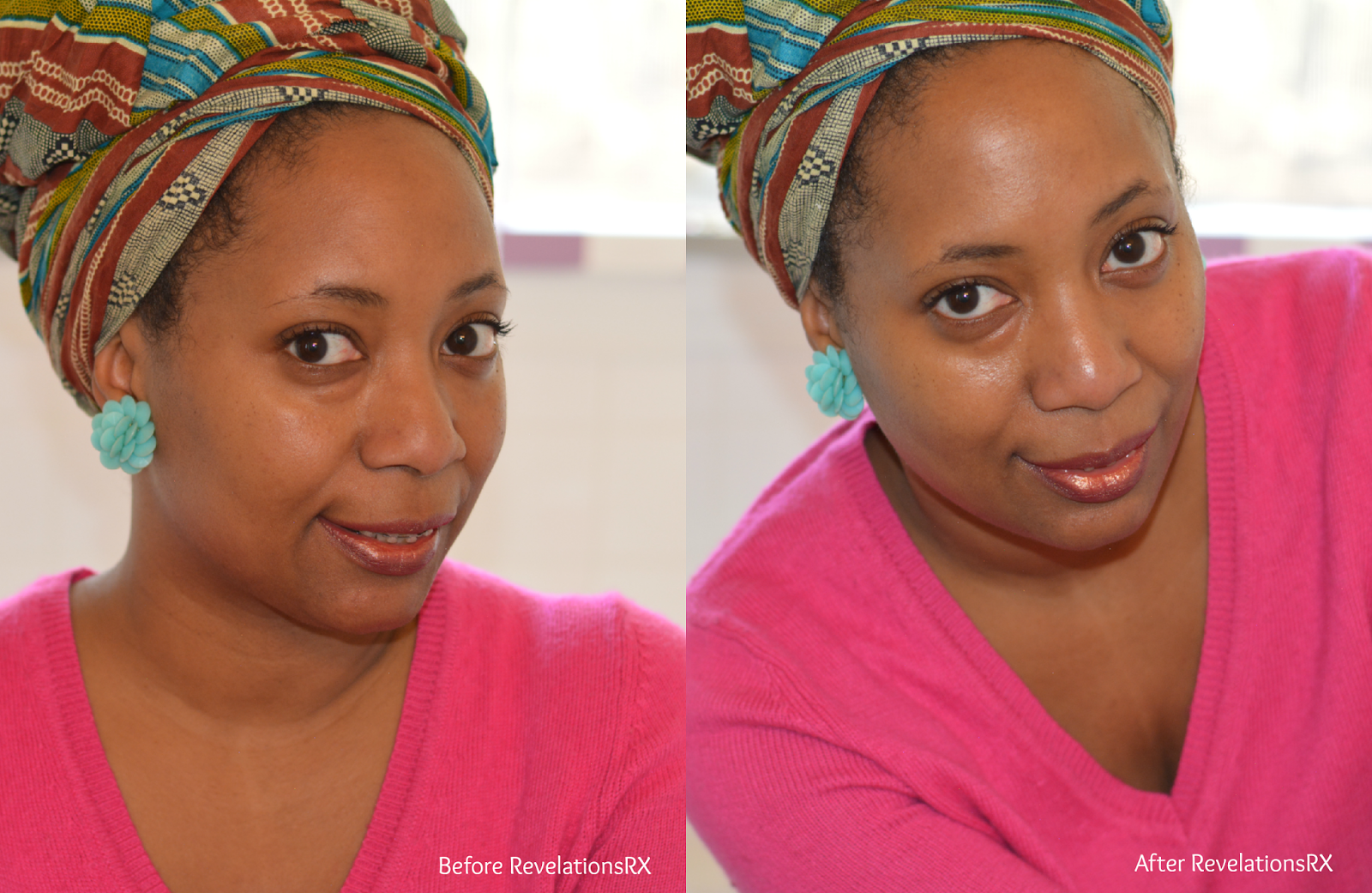 Hydrating Dry Skin with RevelationsRX Face Masks, beauty, skincare, solution for wrinkles