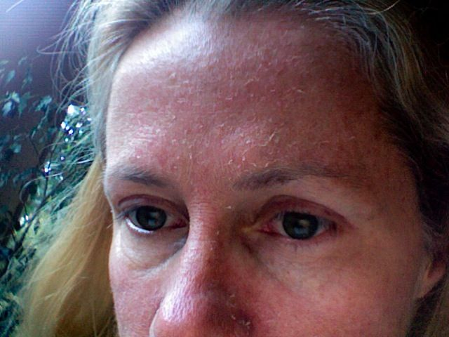 flaky facial skin jpg 1152x768