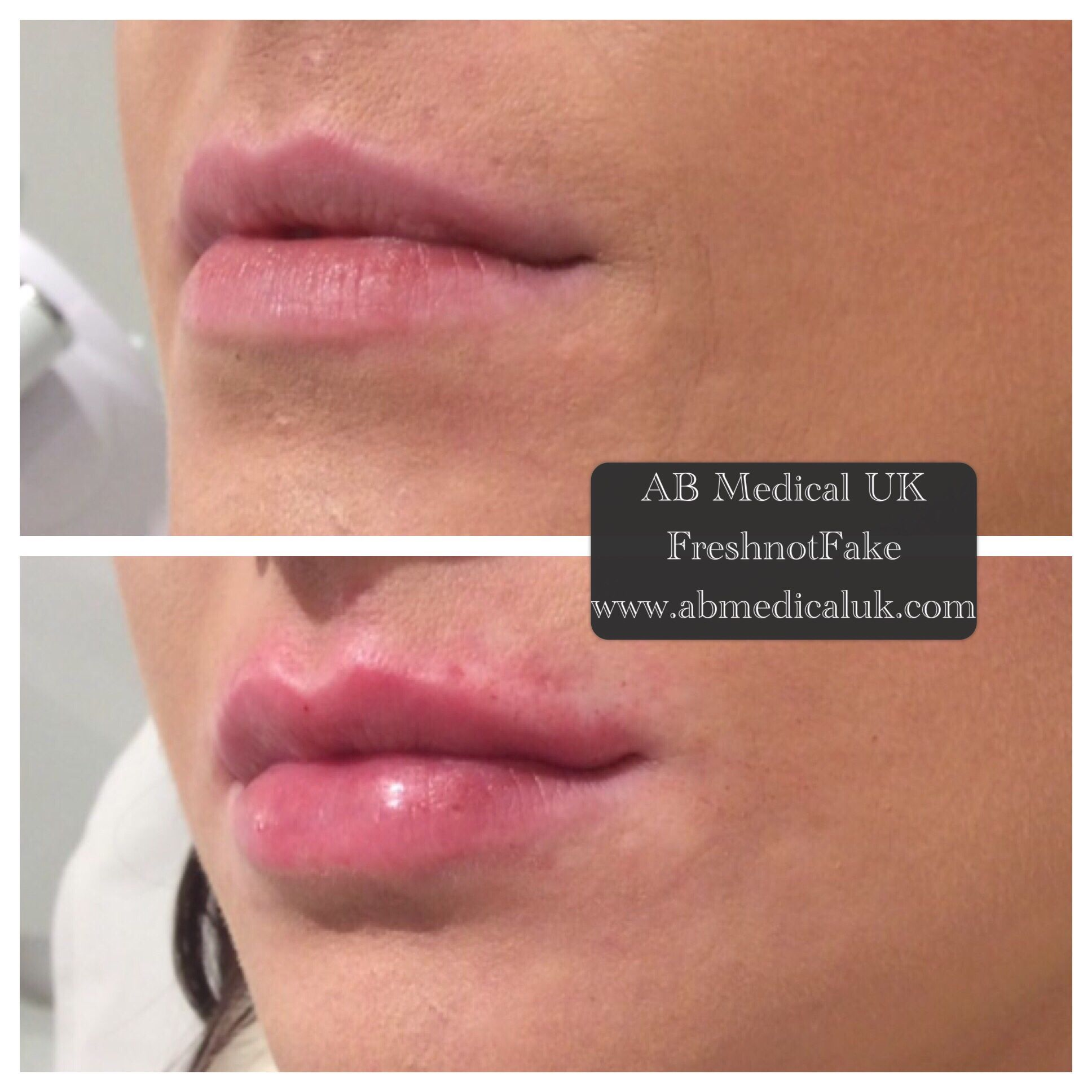 Juvederm ultra smile | Lips | Lip fillers, Lips, Human mouth