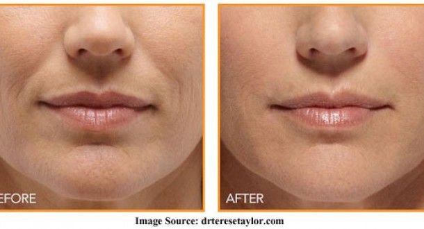 Before And After Process Of Nasolabial Fold Treatment
