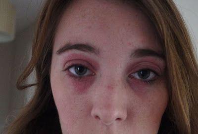 How I Got Rid Of My Eye Eczema Eye Eczema Eczema Around Eyes