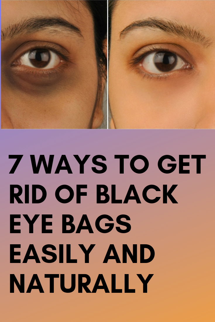 d9d6cd2ff1990a38cb3328a1036d230f - How To Get Rid Of A Black Eye Really Fast