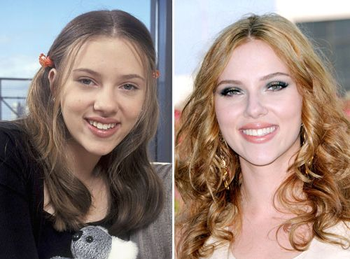 Celebrity Scarlett Johansson Rhinoplasty Celebrity Plastic Surgery Rhinoplasty Nose Jobs Rhinoplasty Before And After
