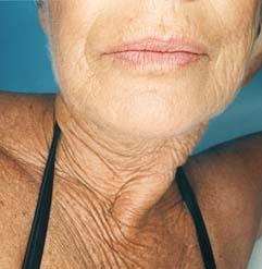 Tech Neck Wrinkles