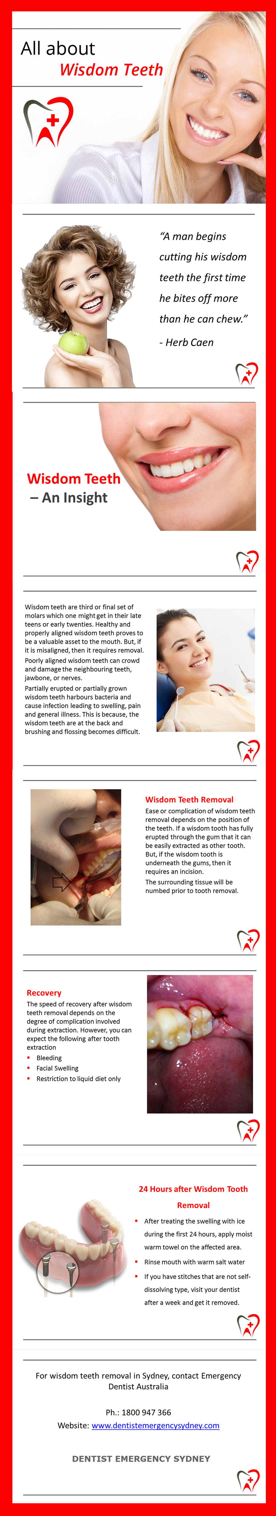 About Wisdom Teeth Removal Wisdom teeth needs to be