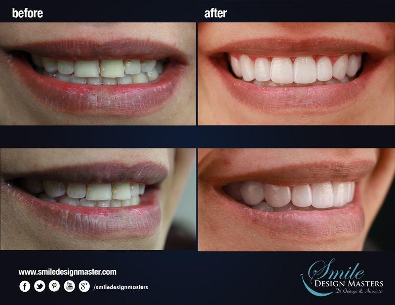 New Transformation Of Smile Composite Resin Veneers Free Digital Smile Design Check Out Www Smiledesignmasters Com Organik Cilt Bakimi Cilt Bakimi