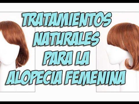 compuesto elección Sotavento  Tratamientos naturales para alopecia femenina | Alopecia femenina, Alopecia  tratamiento, Pérdida de cabello