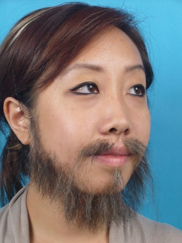 Females facial hair