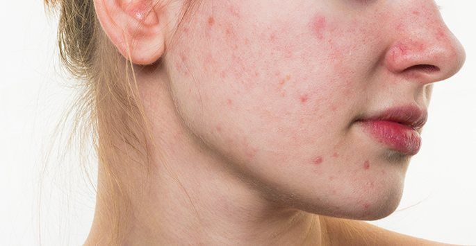 what happens when you have acne rosacea