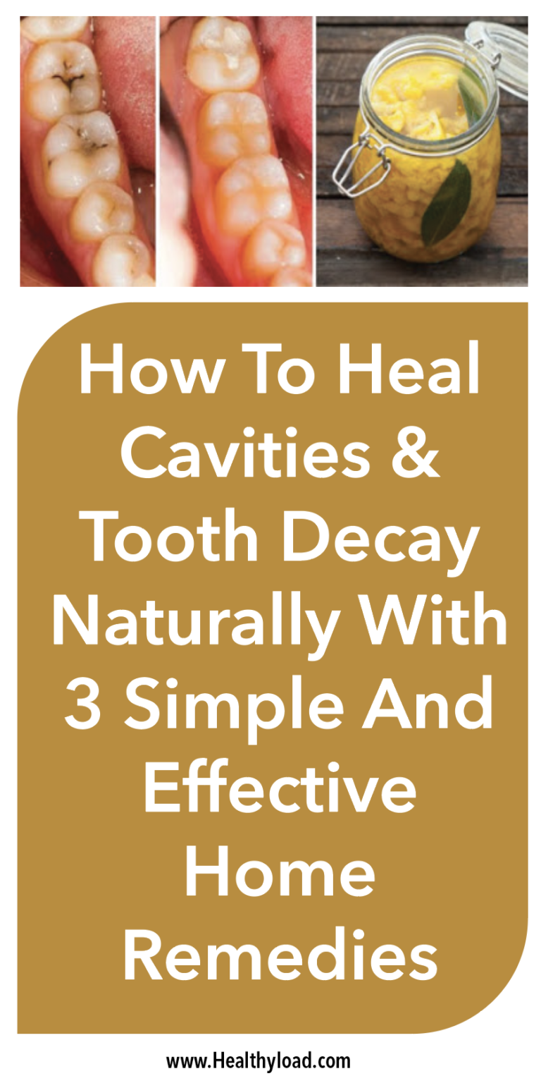 Screen Shot  at  AM  Teeth health  Pinterest