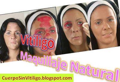 2e9f94010 Maquillaje Para Personas Con Vitiligo: Cómo Cubrir Las Manchas De La Piel.  Cuerpo Sin Vitíligo - Blog de tratamiento natural para combatir el vitiligo  en ...