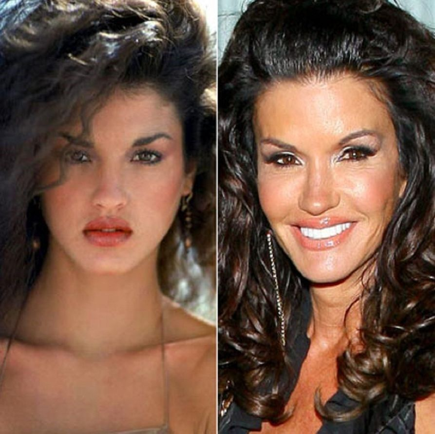 Картинки по запросу Janice Dickinson plastic surgery before and after