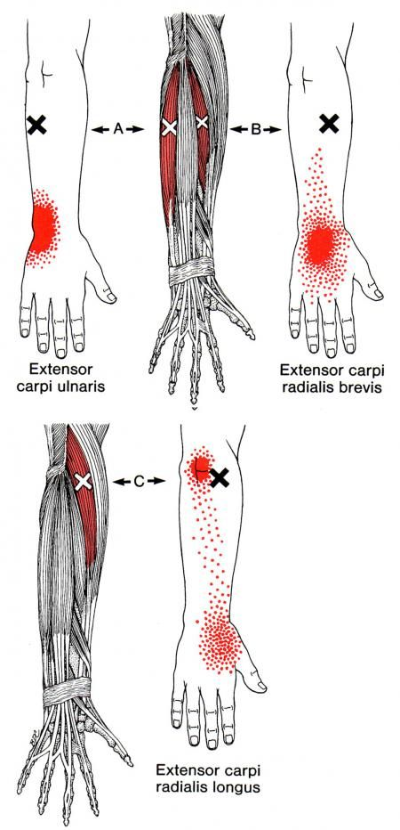 extensor carpi radialis longus the trigger point referred pain