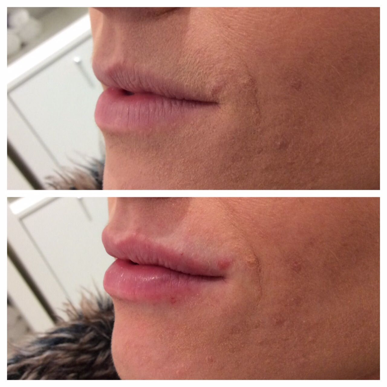 Before & immediately after 0 55ml Juvederm ultra smile to