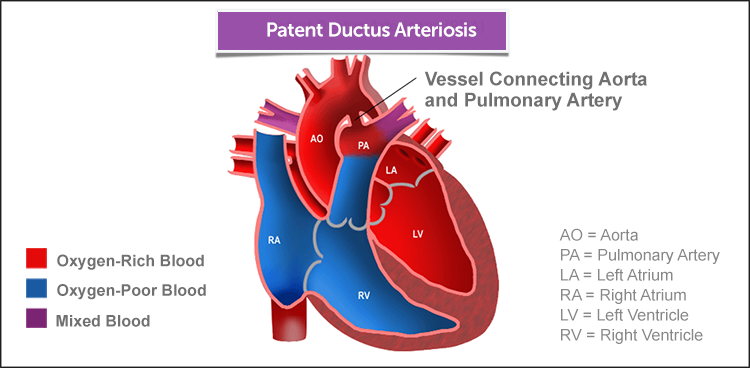 Image result for patent ductus arteriosus | Anatomy | Pinterest ...